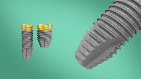 nobel parallel implant dentar nobel biocare
